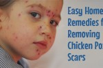 chicken pox scar removal home remedies