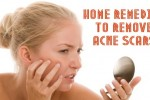Best home remedies to remove acne scars