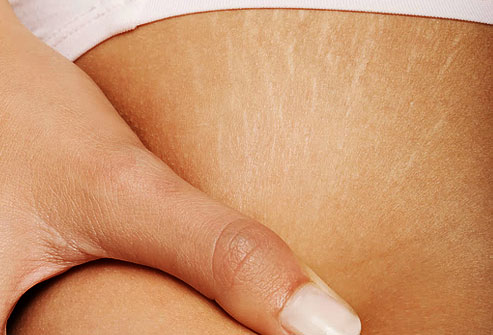 Home Remedies to Reduce Stretch Marks