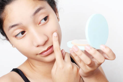 Treatment for Pimple & Oil free Skin