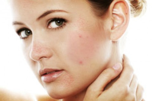 Best Home Remedies For Eczema Scars
