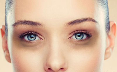 Best Creams to Remove Dark Circles under Eyes in India