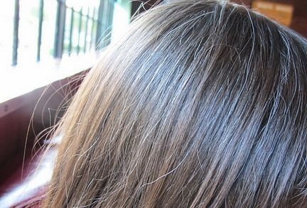 Top 5 Home Remedies to Premature Graying of Hair