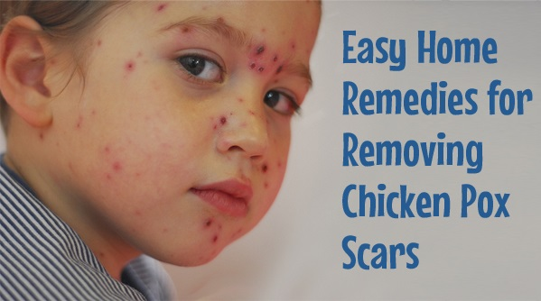 Top 15 Simple Home Remedies for Chicken Pox Scars Removal