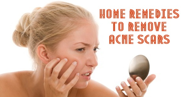 Top 10 Home Remedies to Remove Acne Scars